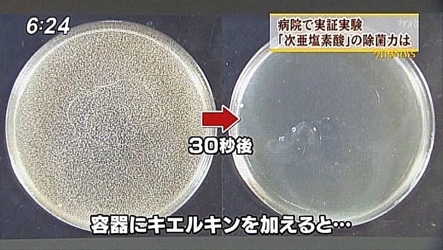 福岡テレビキエルキン4